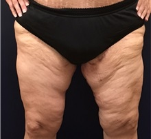 Thigh Lift After Photo by Brian Pinsky, MD, FACS; Huntington Station, NY - Case 30435