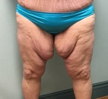 Thigh Lift Before Photo by Brian Pinsky, MD, FACS; Huntington Station, NY - Case 30435