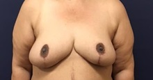 Breast Reduction After Photo by Brian Pinsky, MD, FACS; Babylon, NY - Case 35471