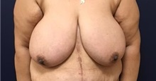 Breast Reduction Before Photo by Brian Pinsky, MD, FACS; Babylon, NY - Case 35471