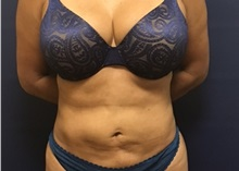 Liposuction After Photo by Brian Pinsky, MD, FACS; Huntington Station, NY - Case 35473