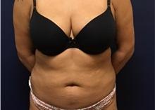 Liposuction Before Photo by Brian Pinsky, MD, FACS; Huntington Station, NY - Case 35473