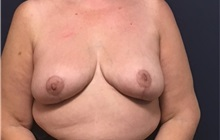 Breast Reduction After Photo by Brian Pinsky, MD, FACS; Huntington Station, NY - Case 35476