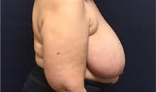 Breast Reduction Before Photo by Brian Pinsky, MD, FACS; Huntington Station, NY - Case 35476