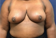Breast Reduction After Photo by Brian Pinsky, MD, FACS; Babylon, NY - Case 35479
