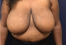 Breast Reduction Before Photo by Brian Pinsky, MD, FACS; Babylon, NY - Case 35479