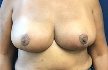 Breast Reduction After Photo by Brian Pinsky, MD, FACS; Babylon, NY - Case 35483
