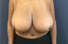 Breast Reduction Before Photo by Brian Pinsky, MD, FACS; Huntington Station, NY - Case 35483