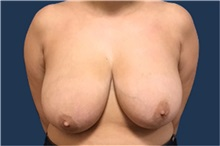 Breast Reduction Before Photo by Brian Pinsky, MD, FACS; Huntington Station, NY - Case 35485