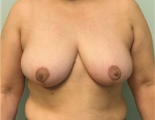 Breast Reduction After Photo by Brian Pinsky, MD, FACS; Babylon, NY - Case 35488