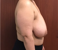 Breast Reduction Before Photo by Brian Pinsky, MD, FACS; Babylon, NY - Case 35488