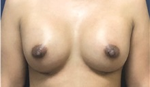Breast Augmentation After Photo by Brian Pinsky, MD, FACS; Huntington Station, NY - Case 35490