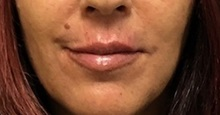 Lip Augmentation / Enhancement After Photo by Brian Pinsky, MD, FACS; Babylon, NY - Case 35491