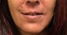 Lip Augmentation / Enhancement Before Photo by Brian Pinsky, MD, FACS; Huntington Station, NY - Case 35491