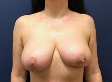 Breast Reconstruction After Photo by Brian Pinsky, MD, FACS; Huntington Station, NY - Case 36510