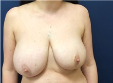 Breast Reconstruction Before Photo by Brian Pinsky, MD, FACS; Huntington Station, NY - Case 36510