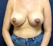 Breast Lift After Photo by Brian Pinsky, MD, FACS; Huntington Station, NY - Case 37612