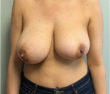 Breast Lift Before Photo by Brian Pinsky, MD, FACS; Huntington Station, NY - Case 37612