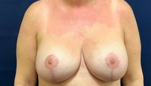 Breast Implant Revision After Photo by Brian Pinsky, MD, FACS; Huntington Station, NY - Case 40832