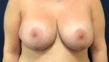 Breast Implant Revision Before Photo by Brian Pinsky, MD, FACS; Huntington Station, NY - Case 40832