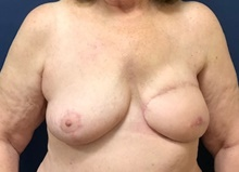 Breast Reconstruction After Photo by Brian Pinsky, MD, FACS; Huntington Station, NY - Case 40835