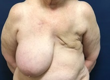 Breast Reconstruction Before Photo by Brian Pinsky, MD, FACS; Huntington Station, NY - Case 40835