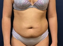 Liposuction Before Photo by Brian Pinsky, MD, FACS; Huntington Station, NY - Case 41414