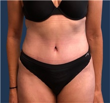 Tummy Tuck After Photo by Brian Pinsky, MD, FACS; Huntington Station, NY - Case 41415