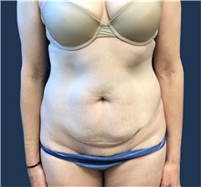 Tummy Tuck Before Photo by Brian Pinsky, MD, FACS; Huntington Station, NY - Case 41415