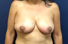 Breast Reduction After Photo by Brian Pinsky, MD, FACS; Huntington Station, NY - Case 42513
