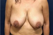 Breast Reduction Before Photo by Brian Pinsky, MD, FACS; Huntington Station, NY - Case 42513