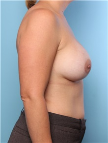 Breast Augmentation After Photo by Mark Gaon, MD; Newport Beach, CA - Case 29184