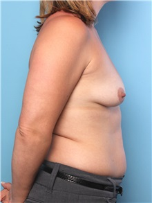 Breast Augmentation Before Photo by Mark Gaon, MD; Newport Beach, CA - Case 29184