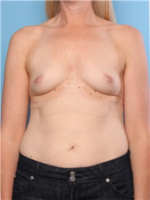 Breast Augmentation Before Photo by Mark Gaon, MD; Newport Beach, CA - Case 29187