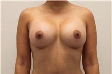 Breast Augmentation After Photo by Ravi Somayazula, DO; Houston, TX - Case 36622