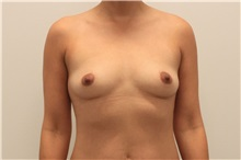 Breast Augmentation Before Photo by Ravi Somayazula, DO; Houston, TX - Case 36622