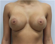 Breast Augmentation After Photo by Ravi Somayazula, DO; Houston, TX - Case 36623