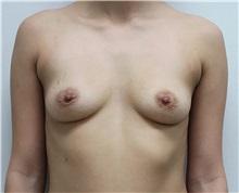 Breast Augmentation Before Photo by Ravi Somayazula, DO; Houston, TX - Case 36623