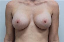 Breast Augmentation After Photo by Ravi Somayazula, DO; Houston, TX - Case 36624