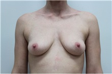 Breast Augmentation Before Photo by Ravi Somayazula, DO; Houston, TX - Case 36624