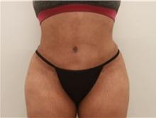 Tummy Tuck After Photo by Ravi Somayazula, DO; Houston, TX - Case 36625