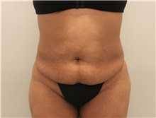 Tummy Tuck Before Photo by Ravi Somayazula, DO; Houston, TX - Case 36625