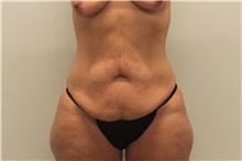 Tummy Tuck Before Photo by Ravi Somayazula, DO; Houston, TX - Case 36626