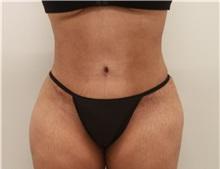 Tummy Tuck After Photo by Ravi Somayazula, DO; Houston, TX - Case 36627