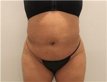 Tummy Tuck Before Photo by Ravi Somayazula, DO; Houston, TX - Case 36627