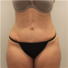 Tummy Tuck After Photo by Ravi Somayazula, DO; Houston, TX - Case 36628