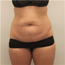 Tummy Tuck Before Photo by Ravi Somayazula, DO; Houston, TX - Case 36628