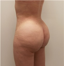 Buttock Lift with Augmentation After Photo by Ravi Somayazula, DO; Houston, TX - Case 36629