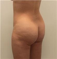 Buttock Lift with Augmentation Before Photo by Ravi Somayazula, DO; Houston, TX - Case 36629