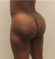 Buttock Lift with Augmentation After Photo by Ravi Somayazula, DO; Houston, TX - Case 36630